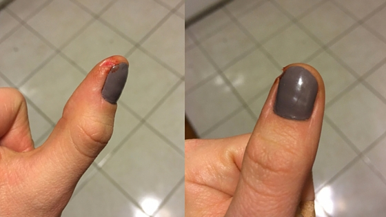 Hurt thumb cooking accident